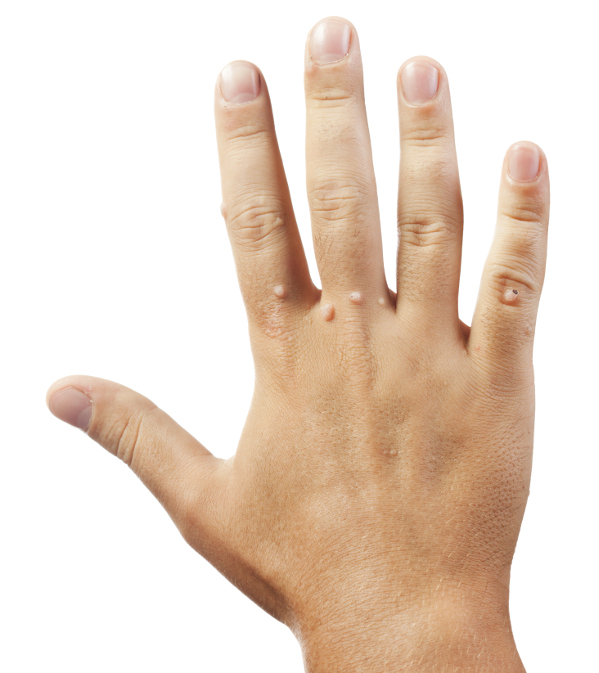 szemölcs kezelés ujja