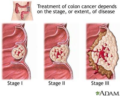 rectosigmoid ráksugárzás