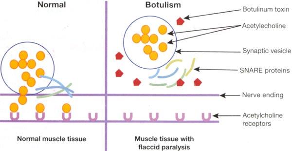 botulinum toxin 2020