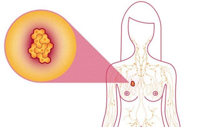 Jóindulatú rák kör. Az elsődleges daganat - jó- és rosszindulatú daganatok