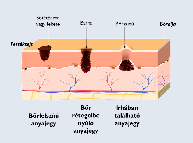 miért vannak papillómák a nyakamon a paraziták a gyomorban mozognak
