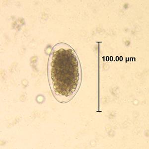 lamblia parazita nedir szemölcsök a hüvely kezelésében