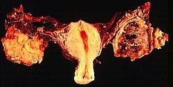 vízi paraziták UK humán papilloma belirtileri
