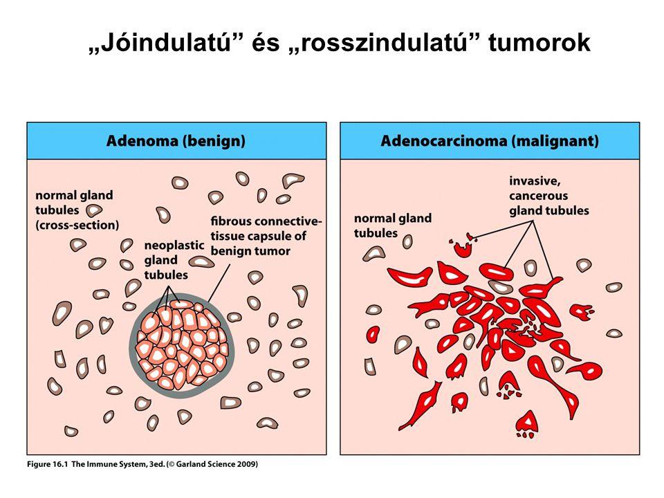 Milyen a tumor marker, amint azt a megnövekedett arányok bizonyítják? - Osztedma October