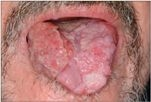 genitális papilloma tünetei papilloma a torokban vagy a szájban