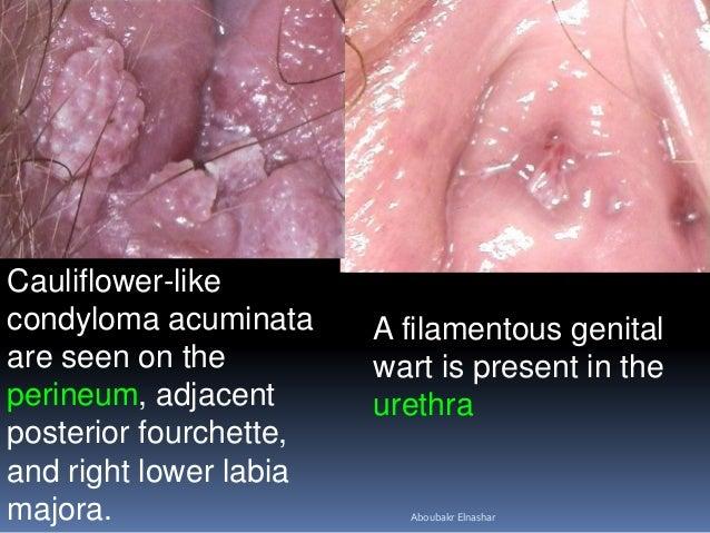 a clitoris condyloma