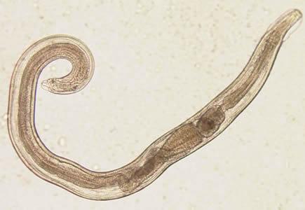 Parazita férgek pinworm