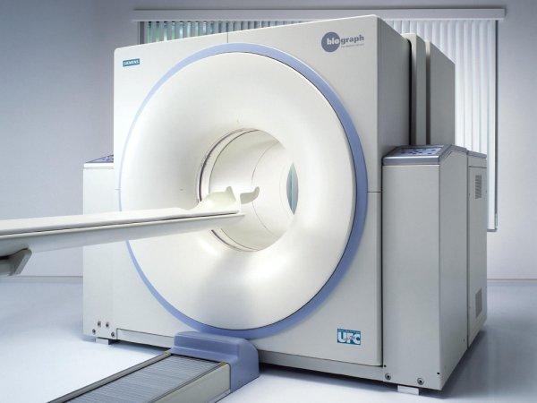 vastagbélrák látható a CT-vizsgálat során