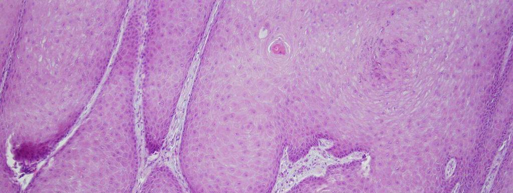 papilláris elváltozások humán papilloma vírus