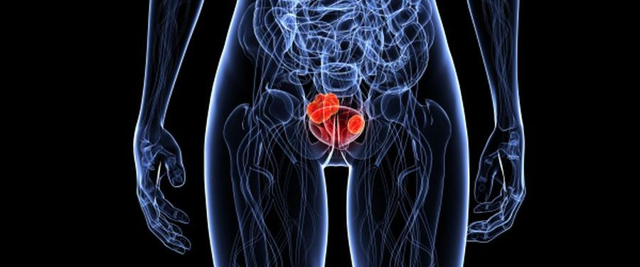 Húgycsődaganat | Urológiai Klinika