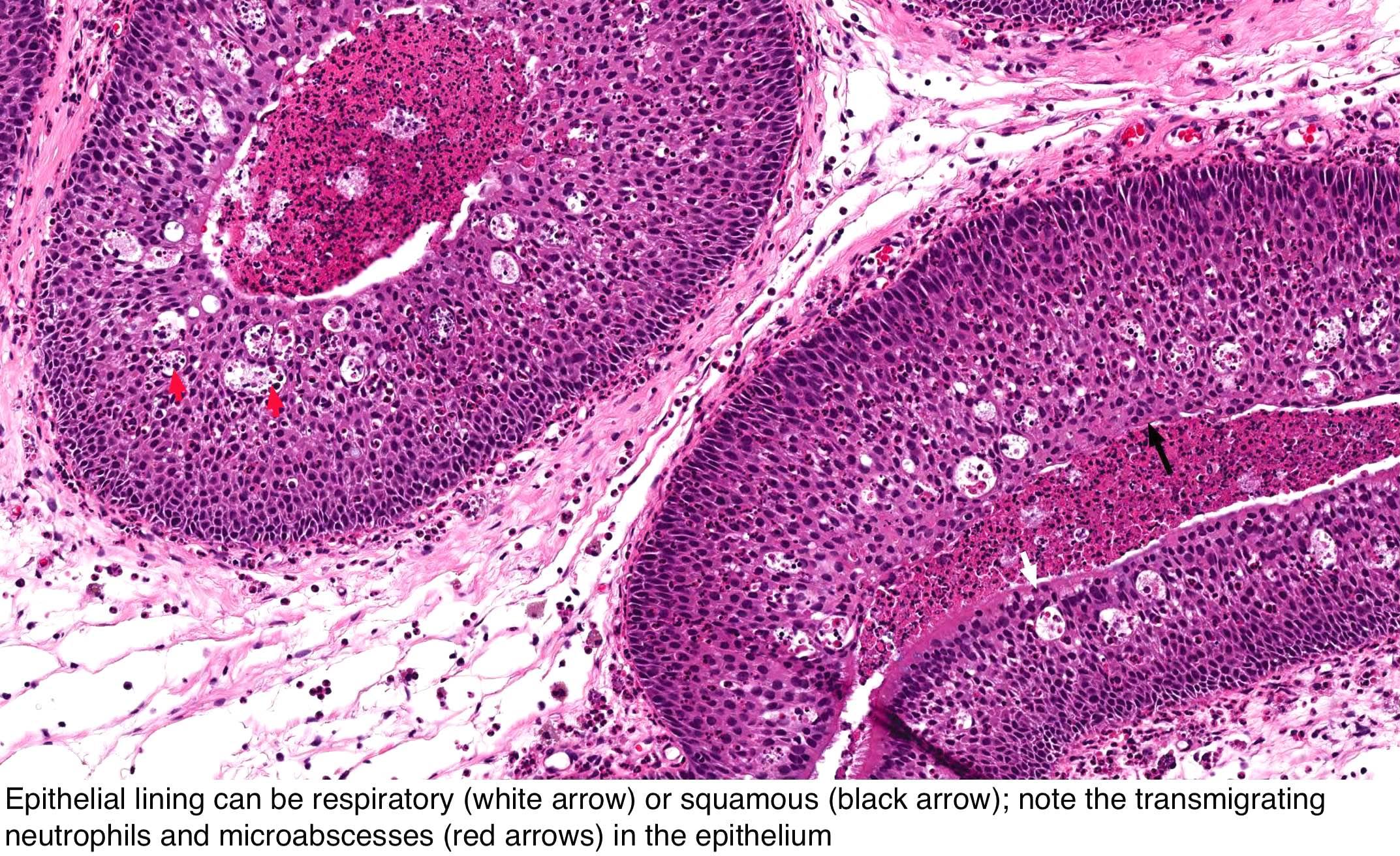 papilloma hayeren papillomavírus vakcinával