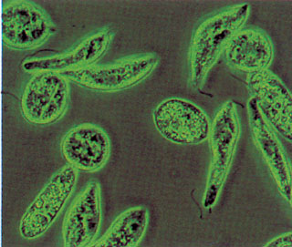 parazita kezelési rendszer a testben