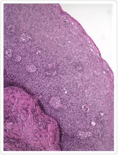 Condyloma nemi betegség | nlc