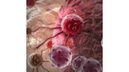 a féreglyuk rosszindulatú daganata giardia xifaxan