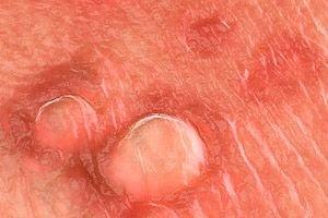 a féregparaziták tünetei és kezelése embereknél