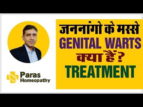 a condyloma patogenezise nem hasi rák