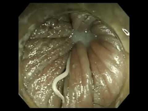 enterobiosis mennyit