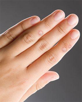 szemölcsök az ujján amikor a nemi szemölcsök eltávolítása után úszhat