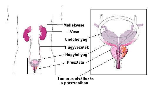 Prosztata daganatok, prosztatarák tünetei, kivizsgálása