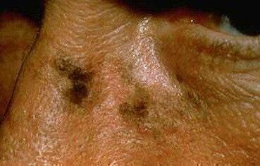 bőr rák a naptól