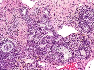 gyengéd féreg készítmények hpv rákmegelőzési profil