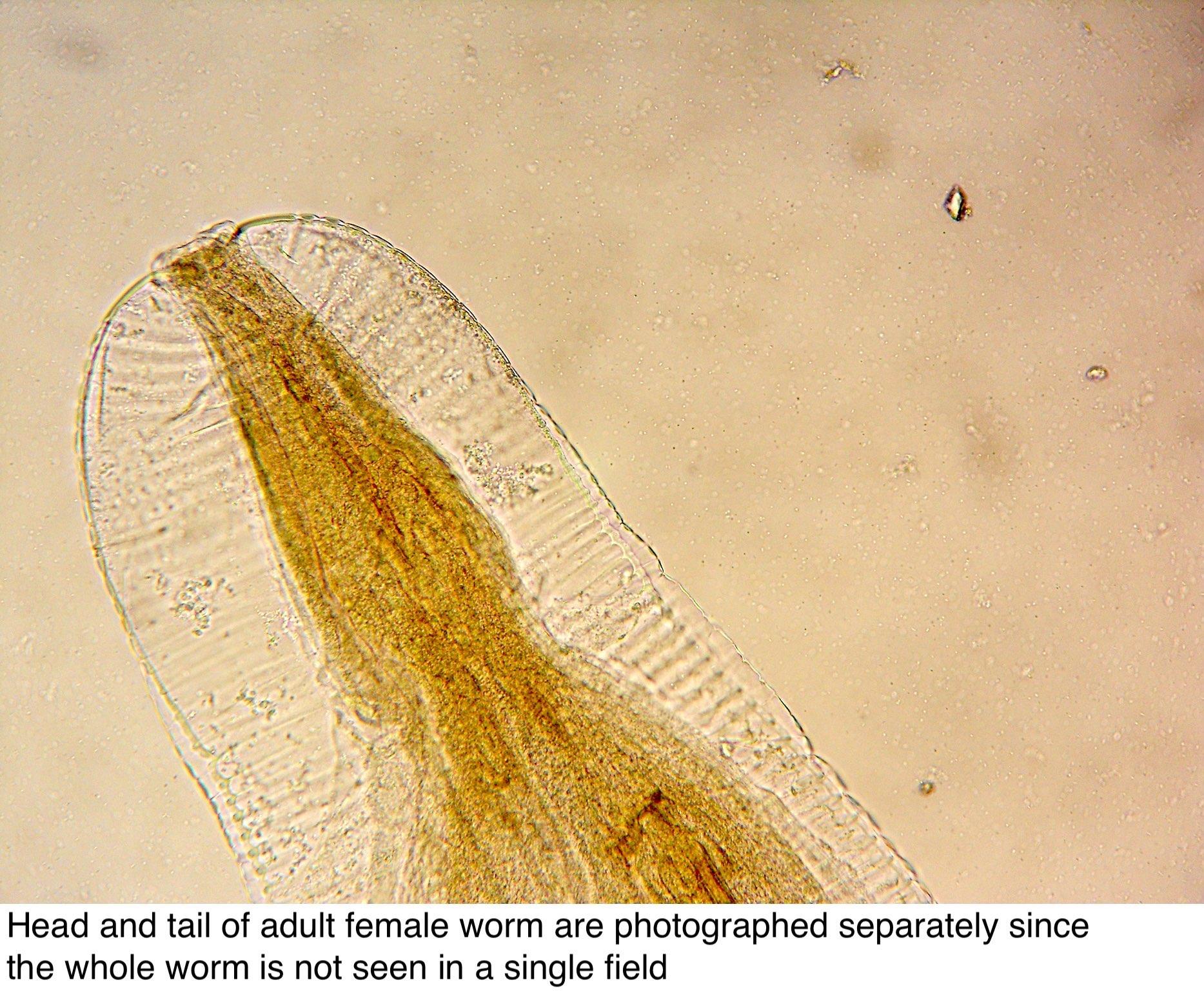 enterobius vermicularis a betegség neve
