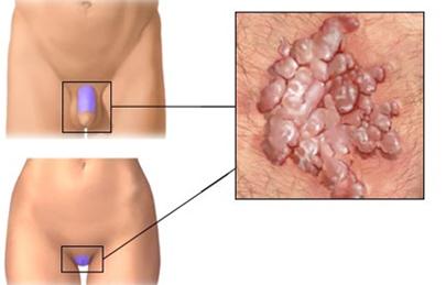 a lapos nyakú condyloma kezelése