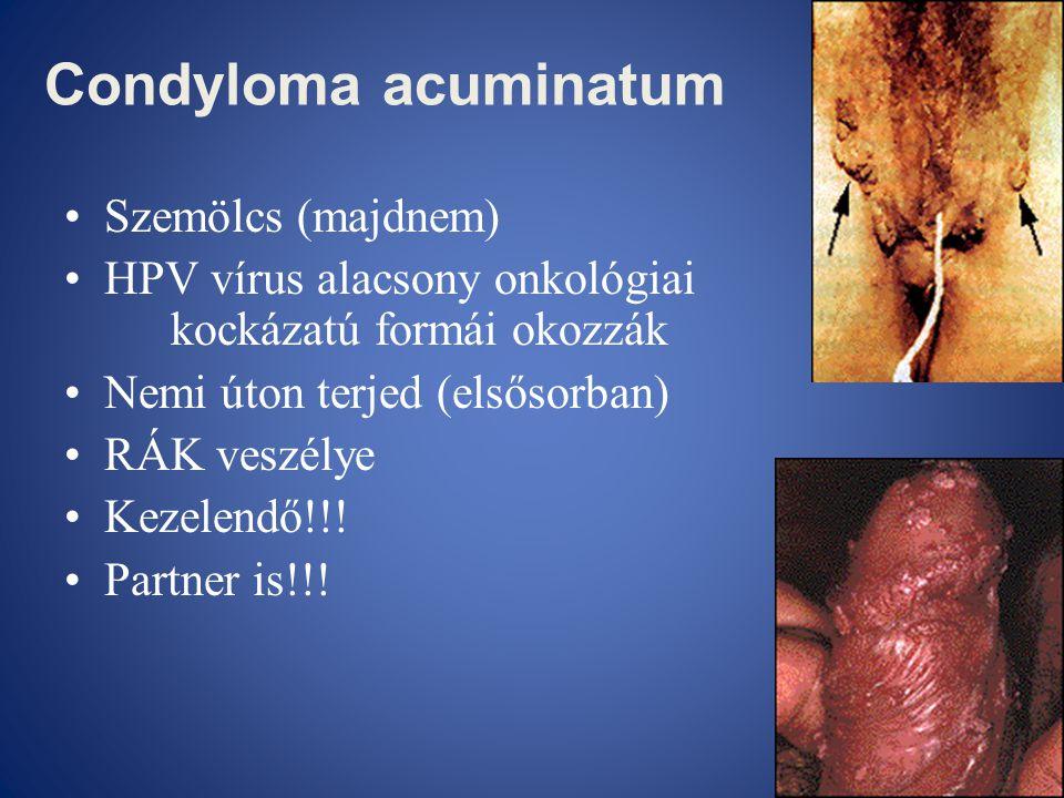 a nemi szemölcsök cauterizációja után a vulvában A HPV valószínűleg meggyógyul