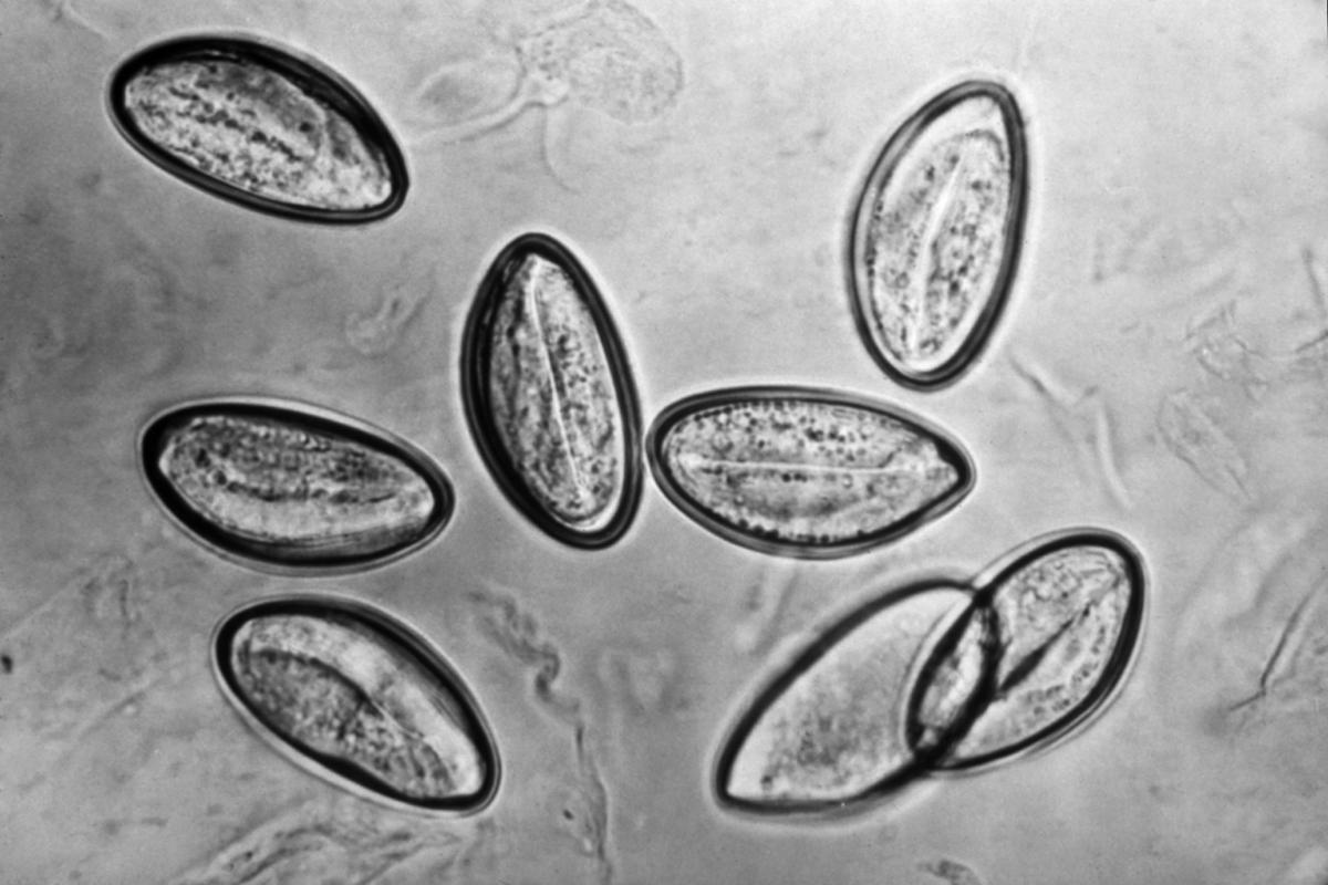 A Magyarországon előforduló féregfertőzések, Emberi enterobiosis