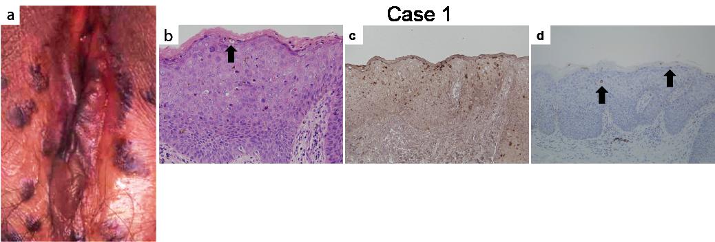 Jegyzetek medikusoknak/Bőrgyógyászat/HPV és Pox vírusok okozta betegségek – Wikikönyvek