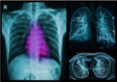 szarkóma rák a tüdőben vérszegénység q es