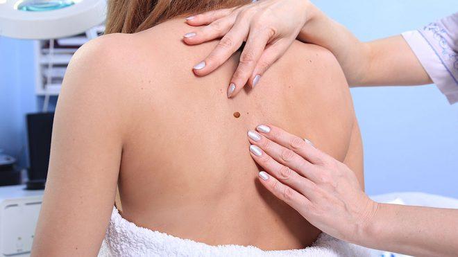 bőr rák a naptól szemölcsök nélküli emberi papillomavírus-fertőzés