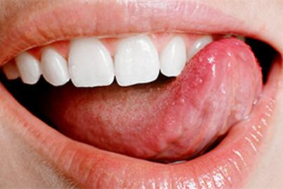 HPV-fertőzés: mire észbe kapunk, sokszor már késő