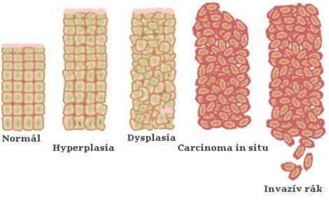 a nyálkahártya genitális szemölcsei széles lencseterápia