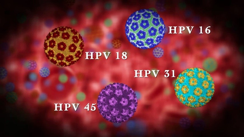 HPV: újonnan felismert kockázati tényező a fej-nyaki rákok kialakulásában