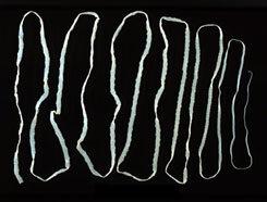 tünetek a testben helminták a belső szervekben