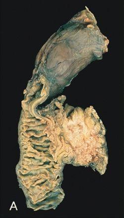 a pinomférgek kezelése vermox-szal krónikus helminthiasis