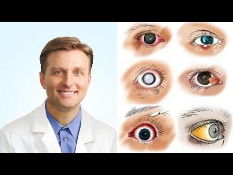 hogyan lehet megszabadulni a szem parazitáitól