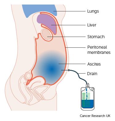 a peritoneális rák meghatározása here papilloma