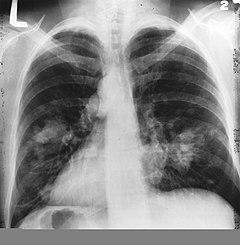 helmint kezelés krohn s papilloma vírus ember tünete