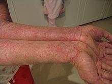 dermatitis 4 hónap