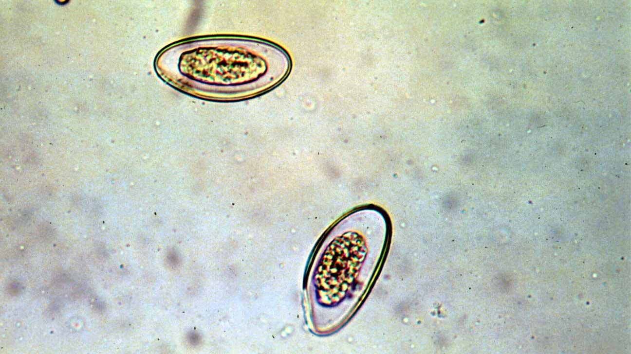 a féreg pinworm szemölcsöket kezelik