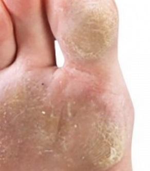 a lábujjak közötti száraz bőrkeményedések kezelése