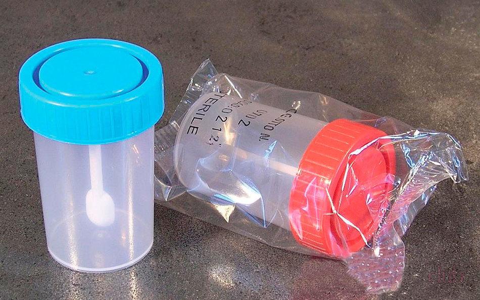 enterobiosis biomaterial A szemölcsök meggyógyulnak