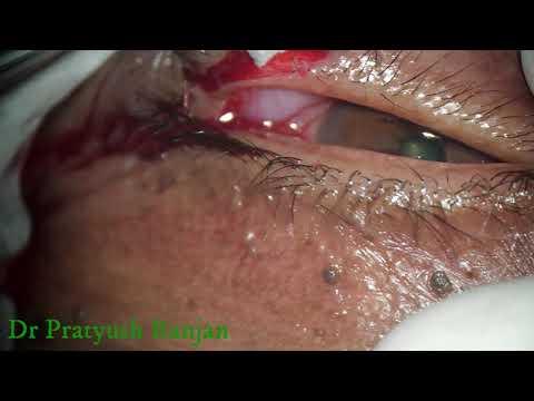 papillomavírus p16 kezelés