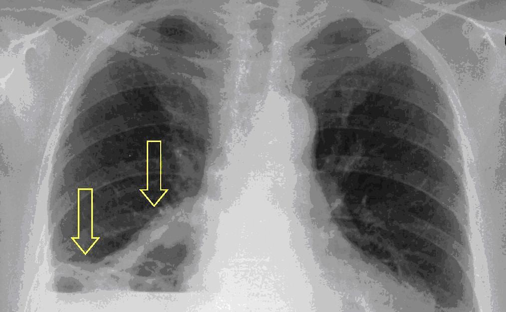 petefészekrák röntgen)