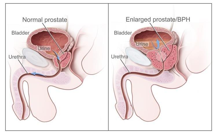 Prosztatarák | Urológiai Klinika