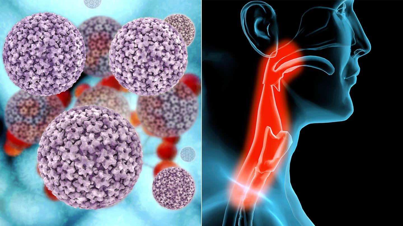hpv 16 rák kockázata