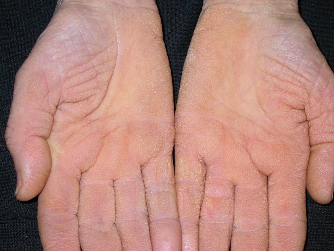 oxiurus és féreg bőrdiszbiózis