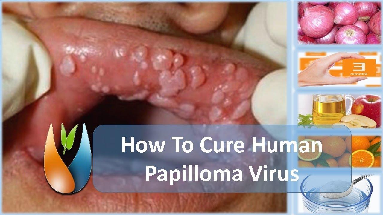 papillomavirus wratten ppt csavar csavar